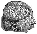 [picture: 606. The quivering brain.]